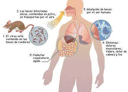 UNICEF y OMS amplían respuesta sanitaria ante brote de fiebre de Lassa en Benín