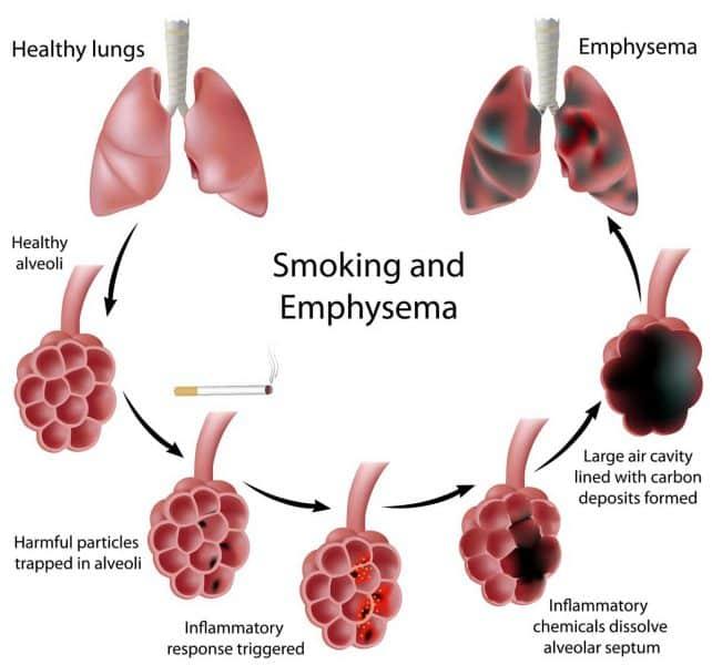 Tabaco principal causante de Enfisema