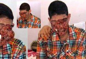 Buscan salvarle la vida a dominicano con tumor en el rostro