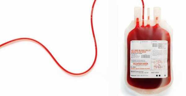 Pareja Testigos de Jehová se oponía a que hija recibiera transfusión de sangre