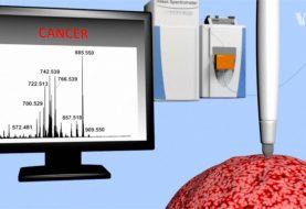 Nueva tecnología detecta el cáncer en 20 segundos