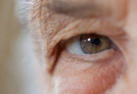 El glaucoma es una de las principales causas de ceguera en el mundo