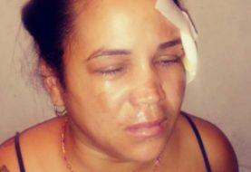 Mujer mata a su padrastro en Santiago