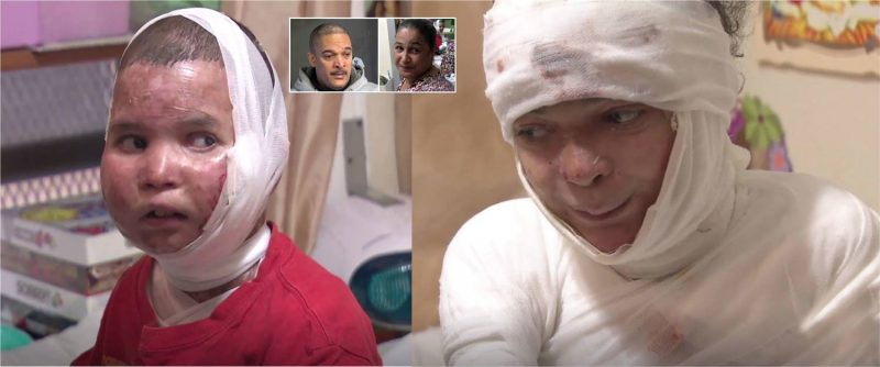 Adolescentes dominicanos sufren epidermólisis ampollosa