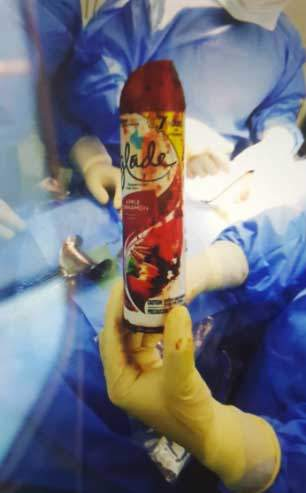 Investiga personal divulgó estudio paciente se introdujo frasco por ano