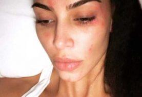 Kim Kardashian muestra rostro cubierto de psoriasis