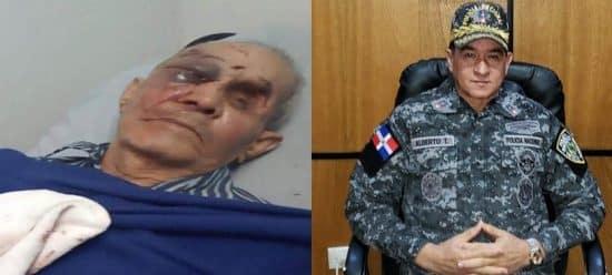 Condenan golpiza a hombre 85 años en Santiago